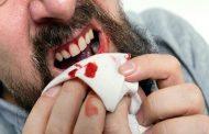 Apa Batal Wudhu Jika Mulut Berdarah