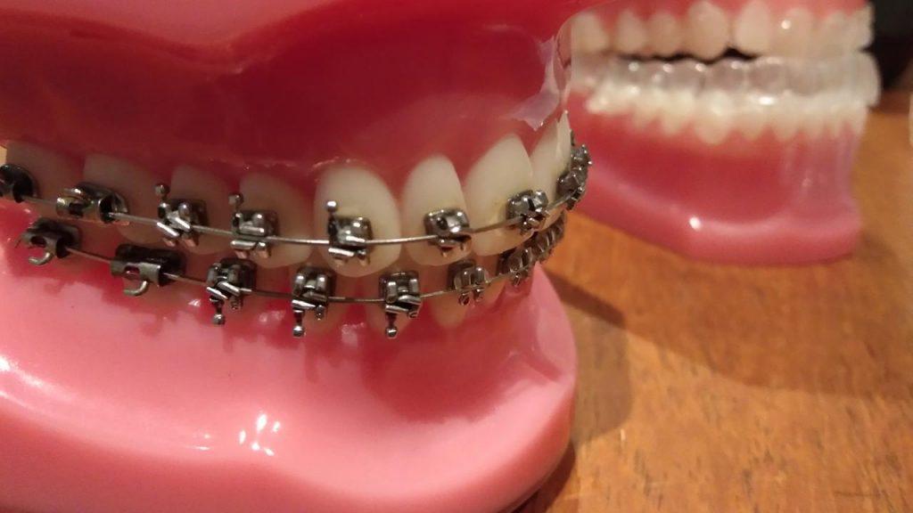 Mempercantik Gigi